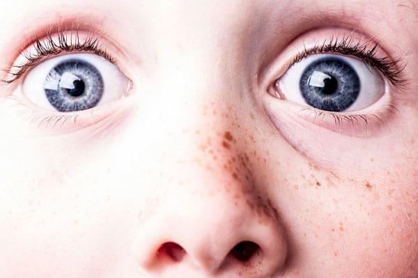 epilazione laser viso. meglio coprire nei e macchie della pelle