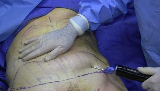 Liposuzione addome: sempre più uomini decidono di sottoporsi a un trattamento di questo tipo.