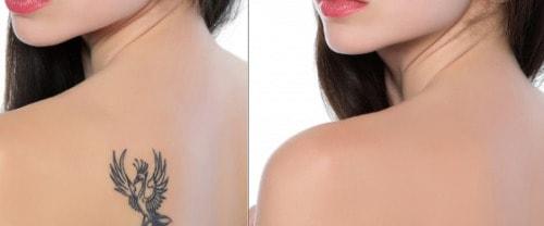 rimozione tatuaggi senza cicatrici grazie al laser Q-switched