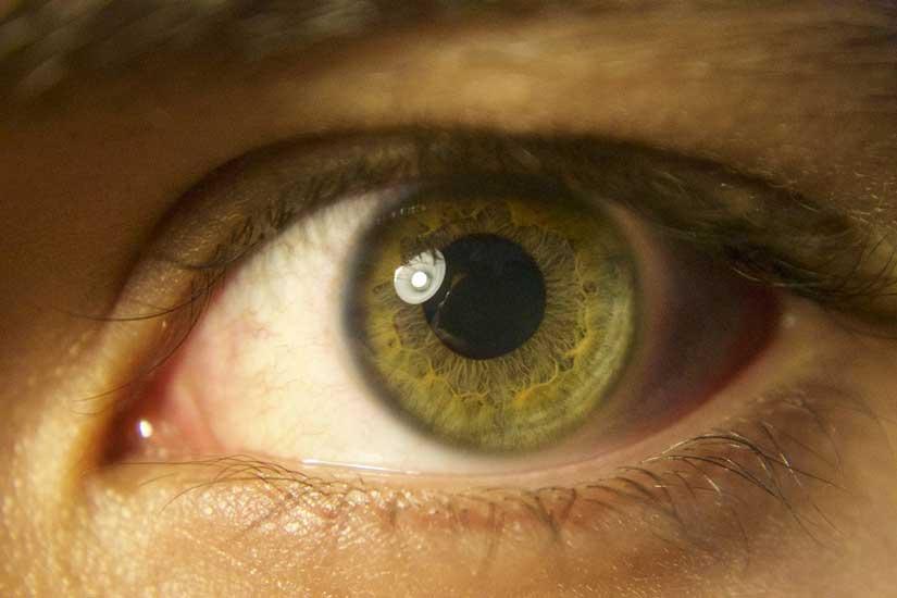 epilazione laser viso: possibili rischi per gli occhi