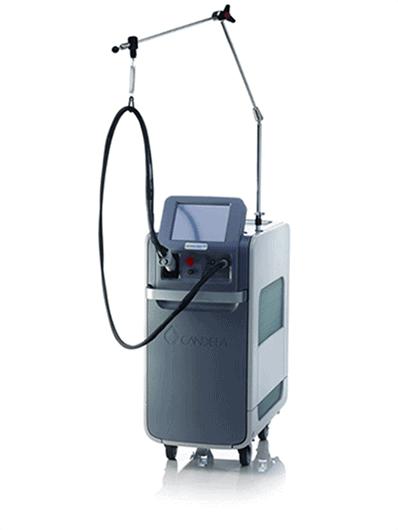 depilazione laser alessandrite