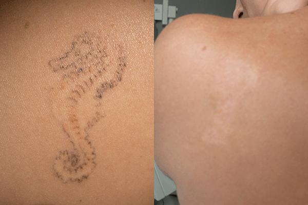 Rimozione tatuaggio prima e dopo di un cavalluccio