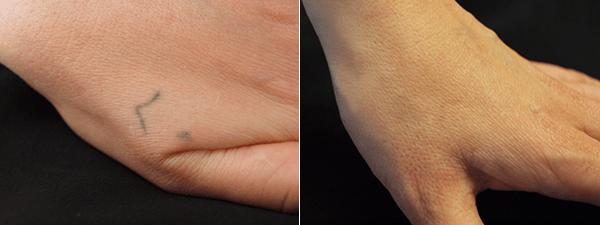 Rimozione tatuaggio sulla mano risultato prima e dopo