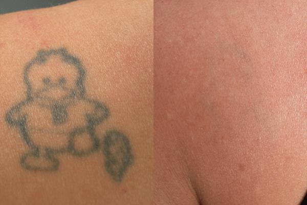Tatuaggio prima e dopo la rimozione