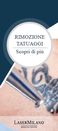 banner rimozione definitiva tatuaggi