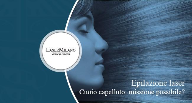 epilazione laser cuoio capelluto