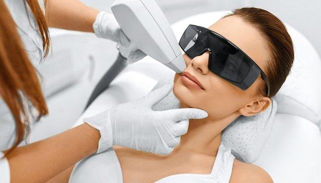 epilazione laser come soluzione ai peli incarniti