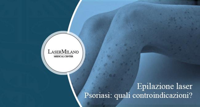 epilazione laser e psoriasi