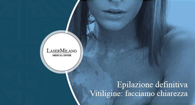 epilazione laser e vitiligine approfondimento