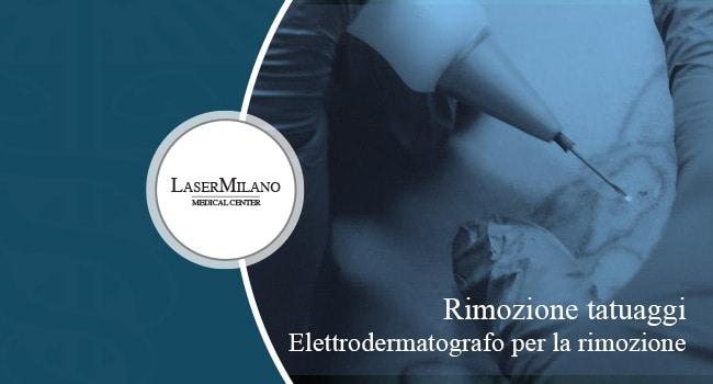 elettroderamatografi per la rimozione dei tatuaggi