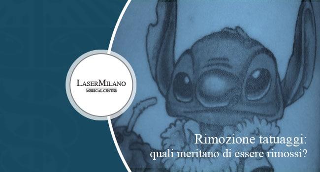 rimozione tatuaggi: ecco quali meritano di essere rimossi