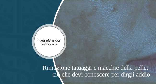 rimozione tatuaggi e macchie della pelle con tecnologia laser q switched nel nostro centro medico di rimozione tatuaggi a Milano