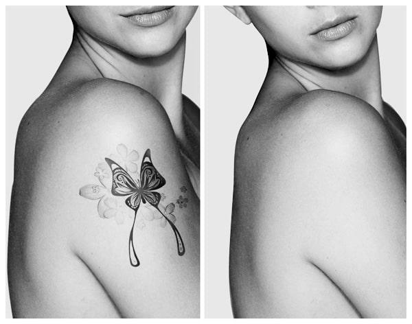 prima di ottenere un risultato definitivo del trattamento di rimozione tatuaggi sono necessarie almeno 4 o 5 sedute