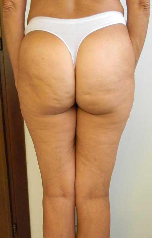 Liposuzione per cellulite: quali sono le zone da trattare?