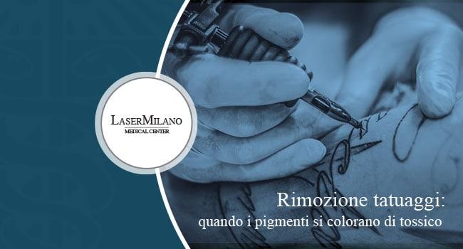 rimozione tatuaggi: pigmenti tossici nell'inchiostro del tatuaggio