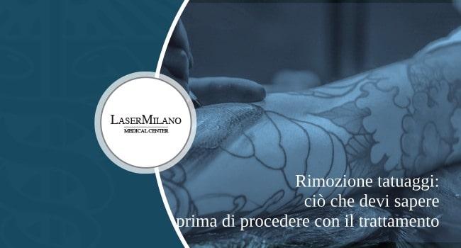 rimozione tatuaggi: cosa sapere prima di sottoporsi al trattamento