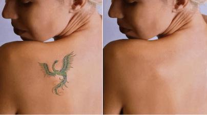 rimozione tatuaggi: trattamento doloroso o indolore?