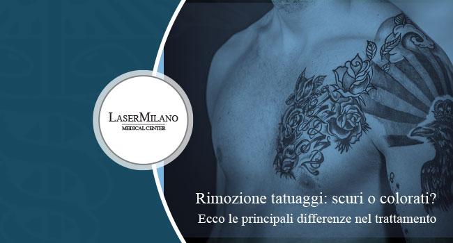 Rimozione tatuaggi scuri e colorati con la tecnologia laser