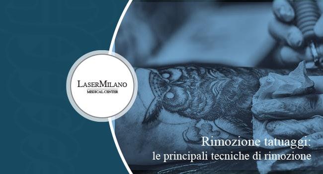 Quali sono le principali tecniche di rimozione tatuaggi?