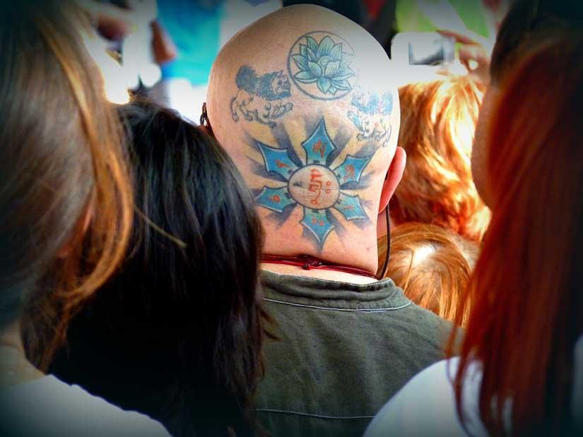Quanto costa togliere un tatuaggio con un trattamento laser?
