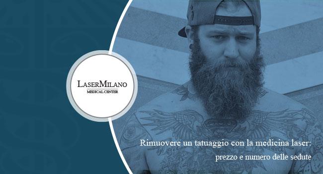 Rimozione tatuaggi 2018 Laser Milano costo