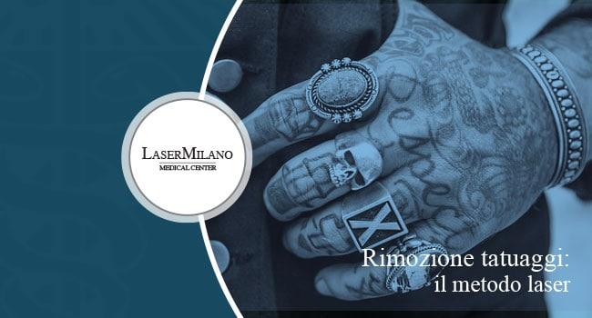 Rimozione tatuaggi laser: quante sedute sono necessarie