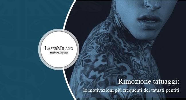 rimozione tatuaggi: quali parti del corpo sono più interessate al trattamento